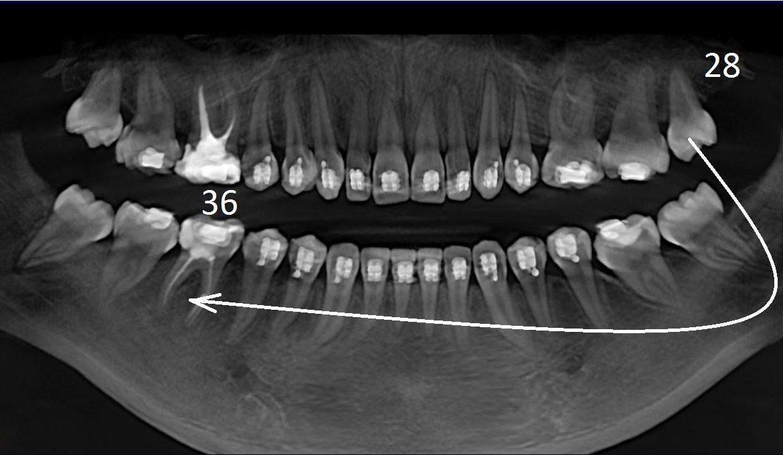 Пересадка родных зубов в Батуми. Трансплантация зубов My Dent
