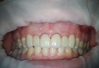 спасение зубов в батуми