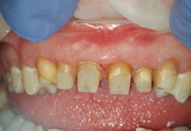 вытяжение зубов батуми