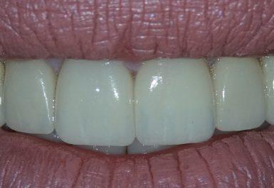 батуми стоматолоческая клиника
